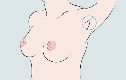 breast augmentation, through under arm