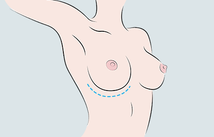 breast augmentation, under breast