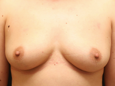 Breast Augmentation, Dr. Laurence
