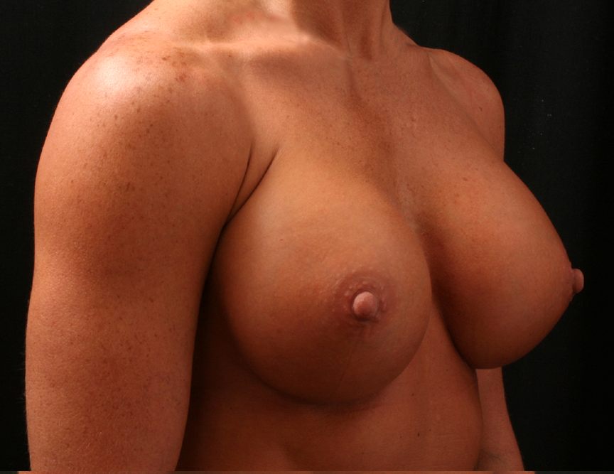 Opinion. You breast reduction memphis tn talk, what